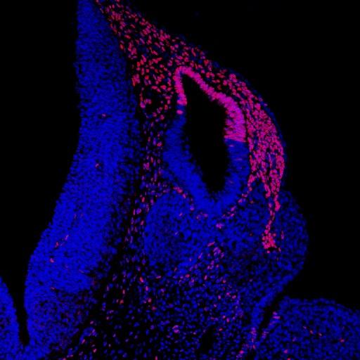 Fig 4A Freyer et al BMC Developmental Biology (2013) 13, 33