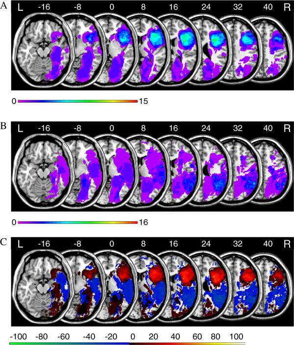 Fig 2 Kopp et al BMC Neurology 2013 13, 179