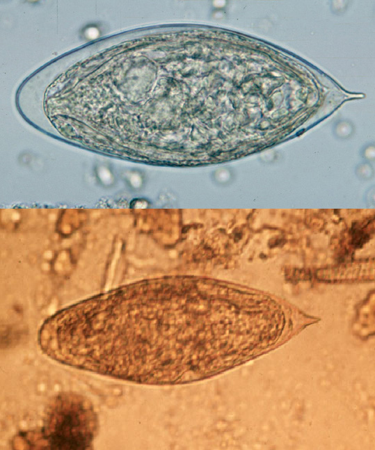 Wet mounts of eggs of S. haematobium (top) and S. intercalatum (bottom) showing characteristic terminal spine, image courtesy of DPDx/CDC