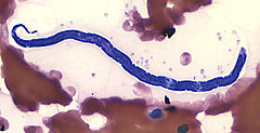 Loa loa microfilaria in a thin blood film: Images from Wikimedia commons