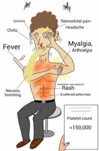 Symptoms of a dengue infection. Source: Wikicommons