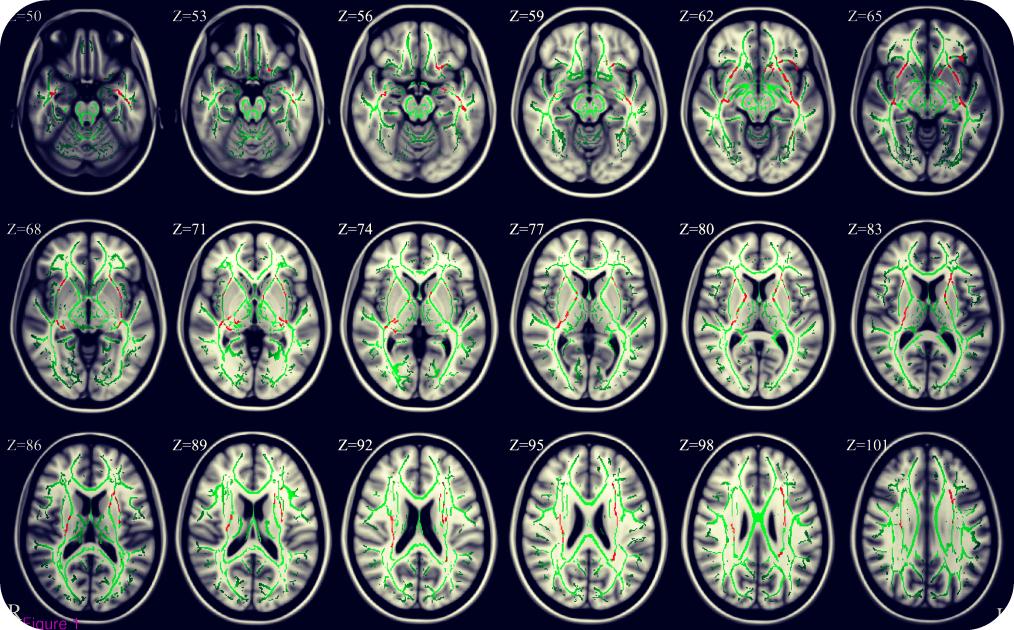 brainmatter2