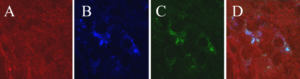 Tau antibody binds Alzheimer's tau inside neurons. Neurons were incubated with pathological tau protein purified from an Alzheimer's patient for 24 hours, followed by tau antibody incubation for 24 hours. Neurons are visualized with an antibody that stains normal and pathological tau (A, red). The Alzheimer's tau can be seen inside the neurons (B, blue), bound to the tau antibody (C, green), as evident as well in the merged image (D).