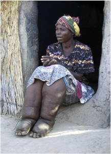 Lymphatic Filariasis patient-a picture of despair and anxiety.