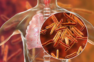 Graphic showing lungs and close-up view of Mycobacterium tuberculosis bacteria