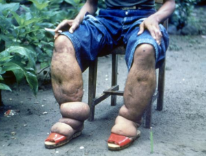 elephantiasis - image credit CDC
