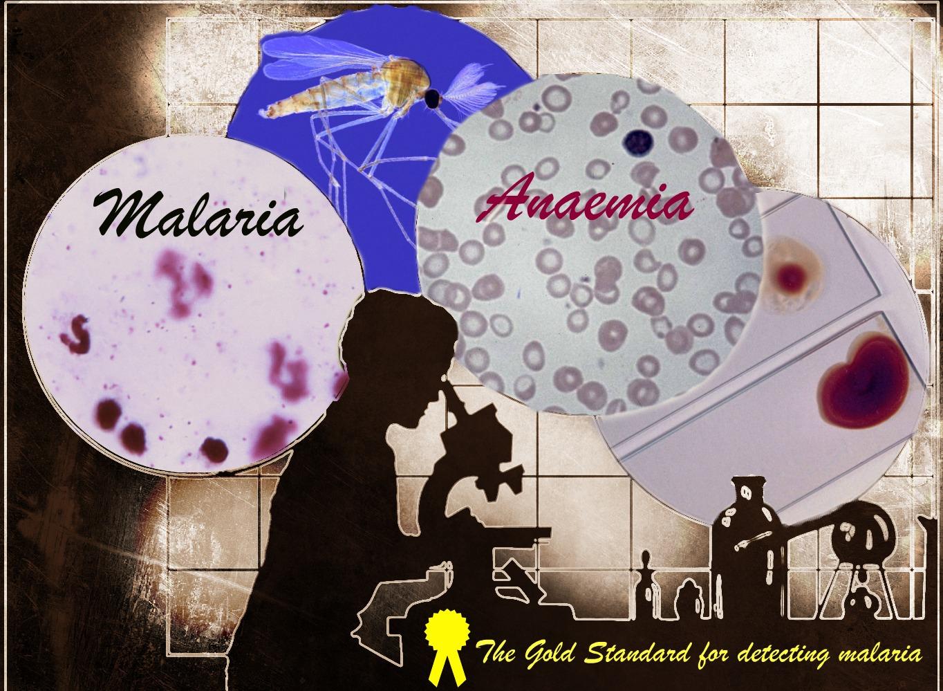 Malaria_anaemia_diagnostic_challenge