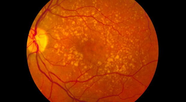 Intermediate age-related macular degeneration