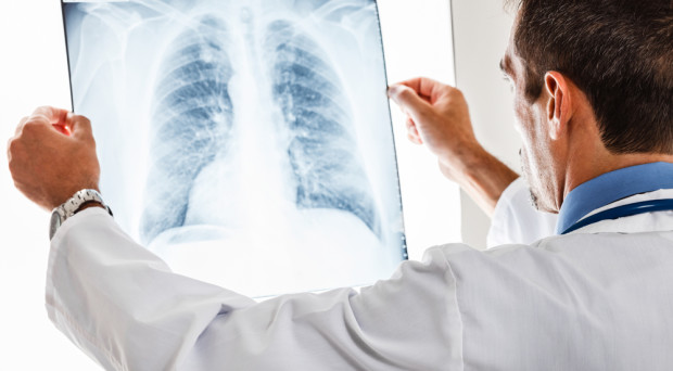 Doctor examining a lung