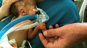 800px-Premature_infant_CPAP-620x342